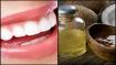 ಆರೋಗ್ಯ ಟಿಪ್ಸ್: ಹಲ್ಲುಗಳ ಆರೈಕೆಗೆ ಬಳಸಿ 'ತೆಂಗಿನ ಎಣ್ಣೆ'!