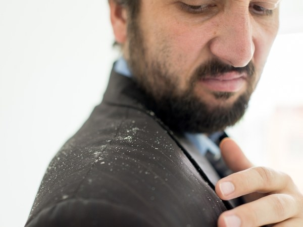 This Common Ingredient Can Reduce Dandruff In A Week!