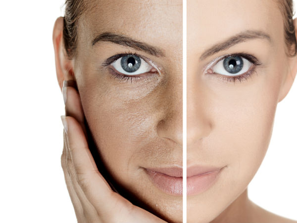 Shocking Reasons Why You Are Getting Wrinkles At An Early Age!