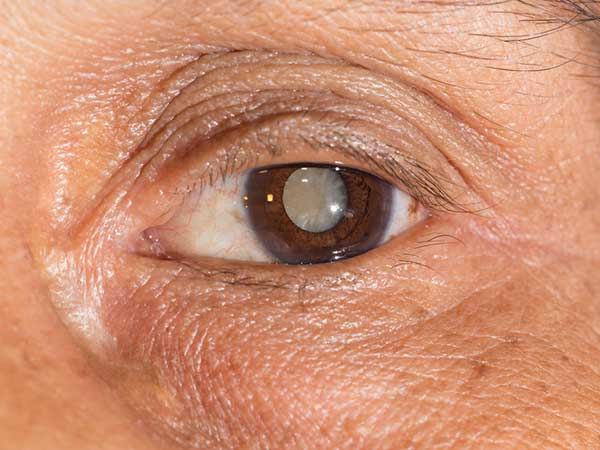 This Common Herb Can Treat Cataracts Effectively!