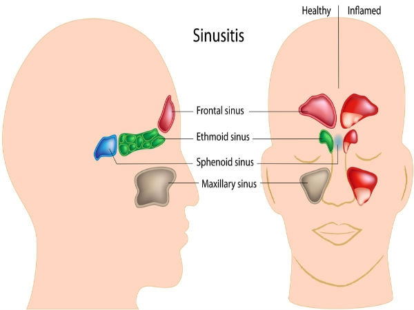 Best Treatment For Sinusitis