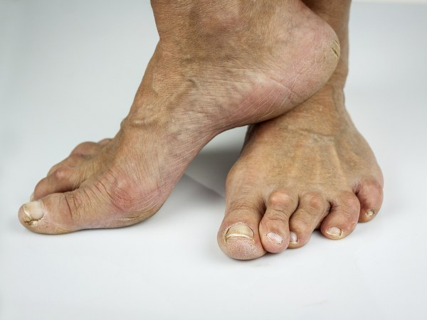 Simple Tips To Prevent Cracked Heels, That You Never Knew!
