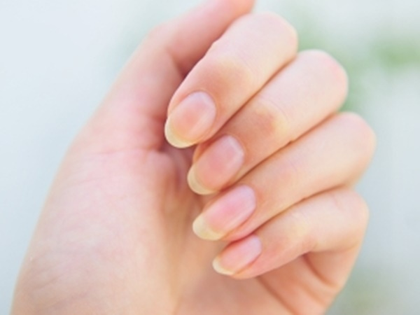 Amazing Home Remedies Treat Brittle Nails