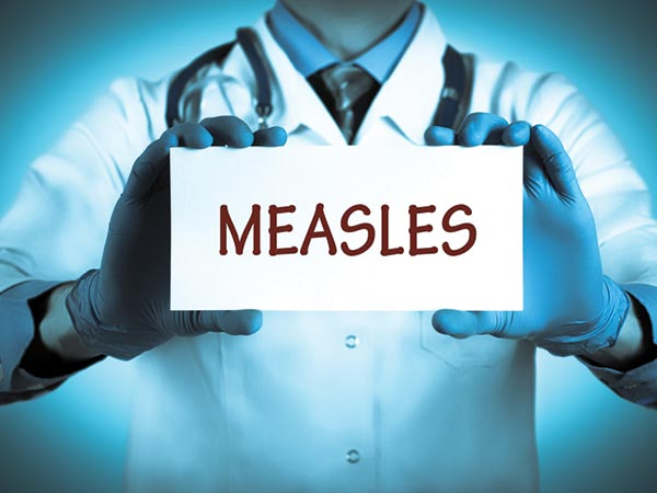 All You Need To Know About Measles