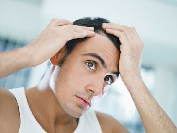 Baldness in men