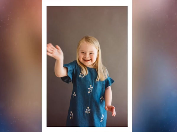 7-Year-Old Model With Down Syndrome