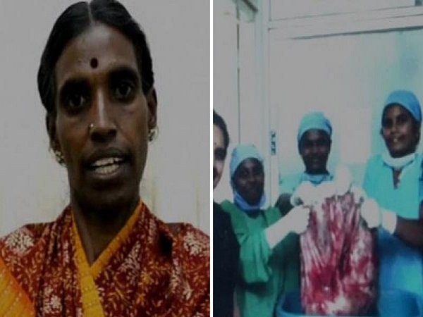 World S Heaviest Ovarian Cancer Tumour Was Removed By Doctors
