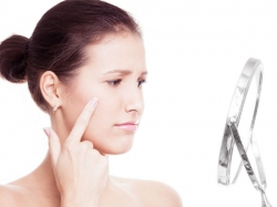 Simple Ways Avoid Acne