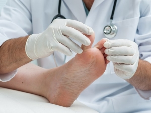 Diabetic Foot Care Everything You Need Know