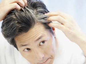 Ways Prevent Premature Greying