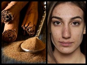 Diy Face Pack Spots Using Cinnamon