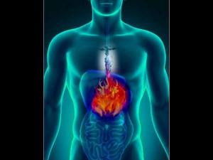 Surprising Things That Make Acidity Worse