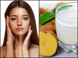 Potato Face Mask Recipes Brighter Skin Tone A Month