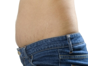 Causes Remedies Stretch Marks