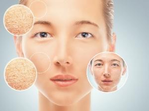 Skin Care Hacks Monsoon