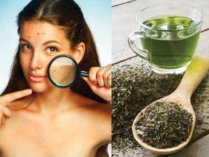 Easy Green Tea Remedies Acne