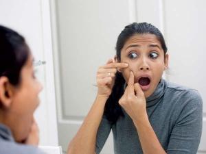 Fast Remedies That Lighten Pimple Scars
