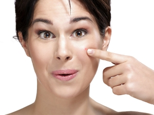 Ways Treat Acne Naturally