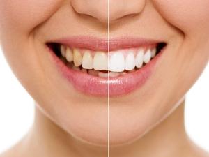 Kitchen Ingredients Can Whiten Your Teeth 2 Days