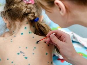 How Is Neem Used On Skin Chickenpox