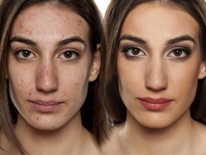 Kitchen Ingredients Can Reduce Acne A Week
