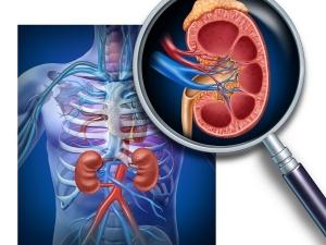 Ayurveda Treat Kidney Stones