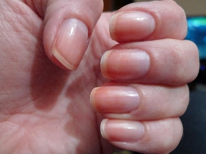 Ways Get Rid Stained Nails