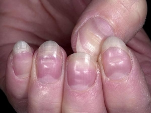 Nail Colour Texture It Can Be Sign These Deadly Diseases