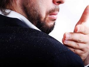 Simple Tips Get Rid Dandruff Permanently