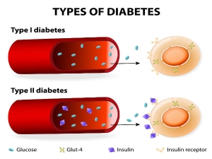 How Does Type 1 Diabetes Differ From Type 2 Diabetes