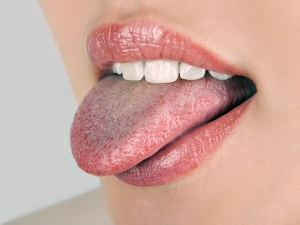 Your Tongue Can Tell Lot About Your Health Condition