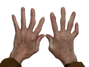 Ayurvedic Remedy Arthritis Pain That Really Works