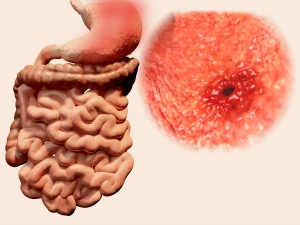 Hidden Symptoms Stomach Cancer You Need Know