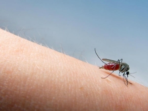 Kitchen Remedies Soothe Mosquito Bite Seconds