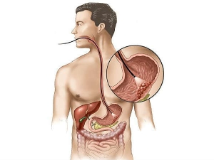 How Smoking Affects Digestive System