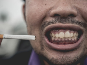 Do You Smoke Here Is How It Can Affect Your Oral Health