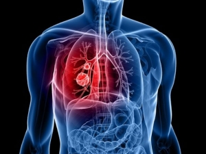 Dangerous Risk Lung Cancer