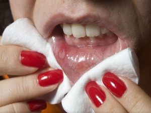 Mouth Ulcer Quick Home Remedies