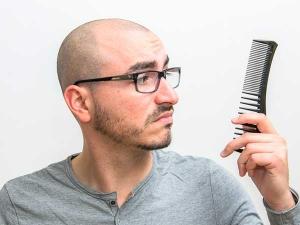 Powerful Remedies Prevent Premature Baldness Men