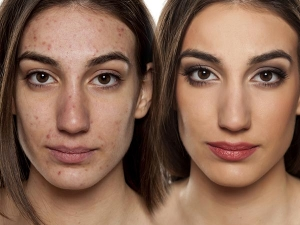 Home Remedies Pimples That Can Be Tried On Any Skin Type