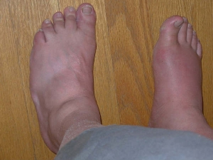 Does Lovemaking Provide Gout Pain Relief