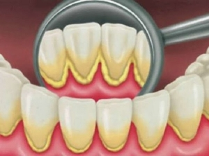 Black Spots On The Teeth Here Are The Home Remedies