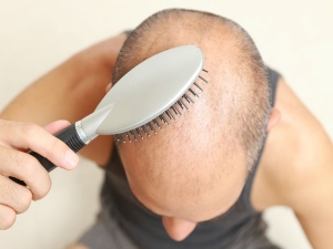Home Remedies Cure Baldness Effectively