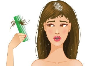 Home Remedies Dandruff Dry Scalp