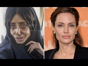 What Did She Really Undergo 50 Surgeries Look This Way
