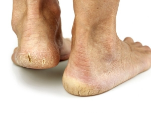 Treating Cracked Heels At Home Simple Home Remedies