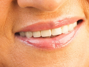 Eight Home Remedies Treat Smile Lines