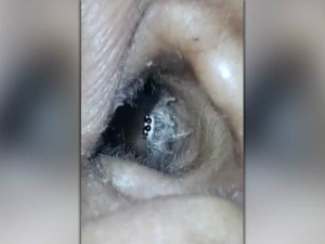 Doctor S Revealed That A Spider Was Living In Her Ear