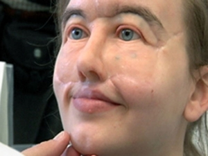 She Was Shot In The Face And This Is How She Looks Now