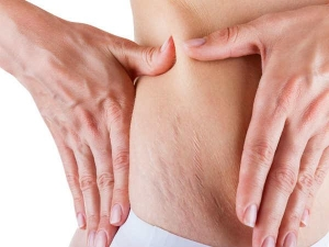 Home Remedies Get Rid Stretch Marks